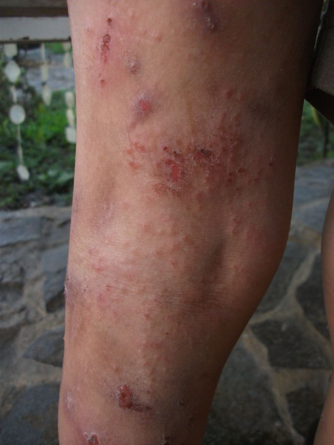 Child Eczema Treatment, Child Eczema Cure - Part 01 with Video and Pictures - Eczema Cure and ...