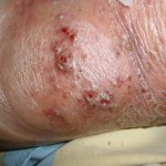 eczema-cure-back-of-knee-dec-2011