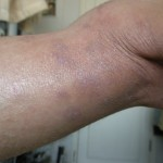 eczema-cure-back-of-knee-jan-2011