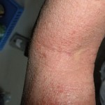 eczema-cure-behind-knee-dec-2011