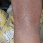 eczema-cure-behind-knee-jan-2011