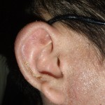 eczema-cure-ear-dec-2011