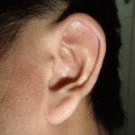 eczema-cure-ear-jan-2011