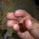 eczema-cure-fingers-jan-2011