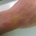 eczema-cure-hand-dec-2011