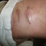 eczema-cure-knee-dec-2011