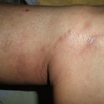 eczema-cure-knee-jan-2012