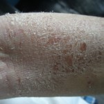 eczema-cure-left-elbow-dec-2011