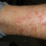 eczema-cure-leg-dec-2011
