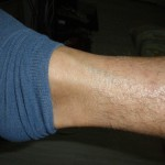 eczema-cure-leg-jan-2011