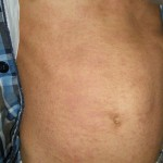 eczema-cure-trunk-dec-2011