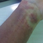 eczema-cure-wrist-dec-2011