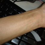 eczema-cure-wrist-jan-2011